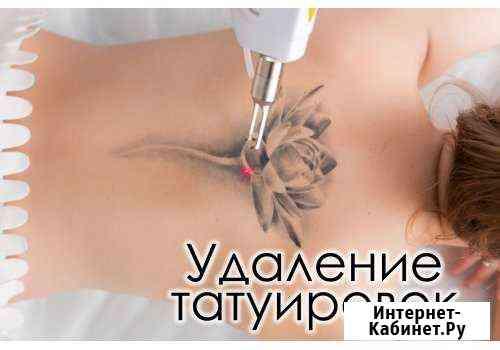 Удаление татуировок/татуажа лазером Кызыл