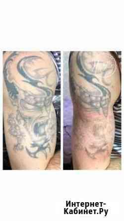 Удаление татуажа и татуировщики Астрахань